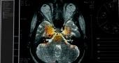 Взлом мозга  2015